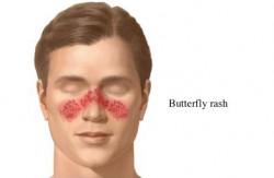 Lupus Butterfly Rash on Face